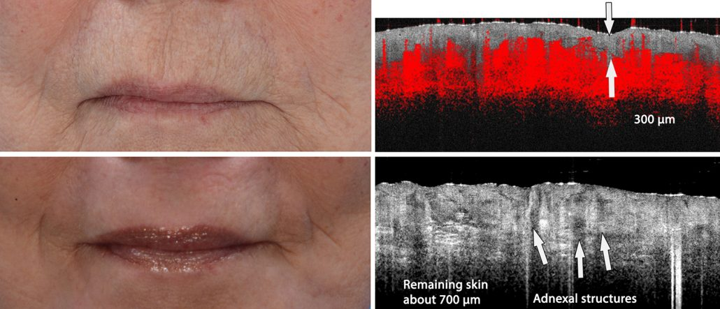 Wrinkles treated very deeply thanks to guidance by VivoSight OCT imaging