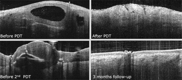 Photodynamic therapy BCC OCT image. before and after