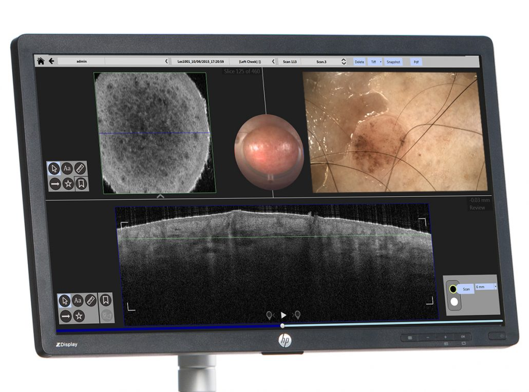 DermoScan dermatoscopes for VivoSight OCT Skin imaging