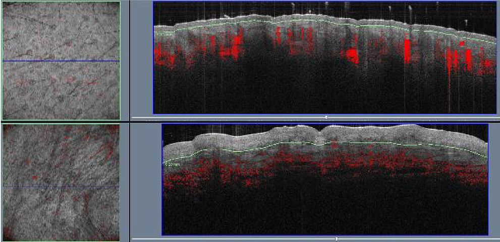 VivoSight OCT Scar depth and other measures