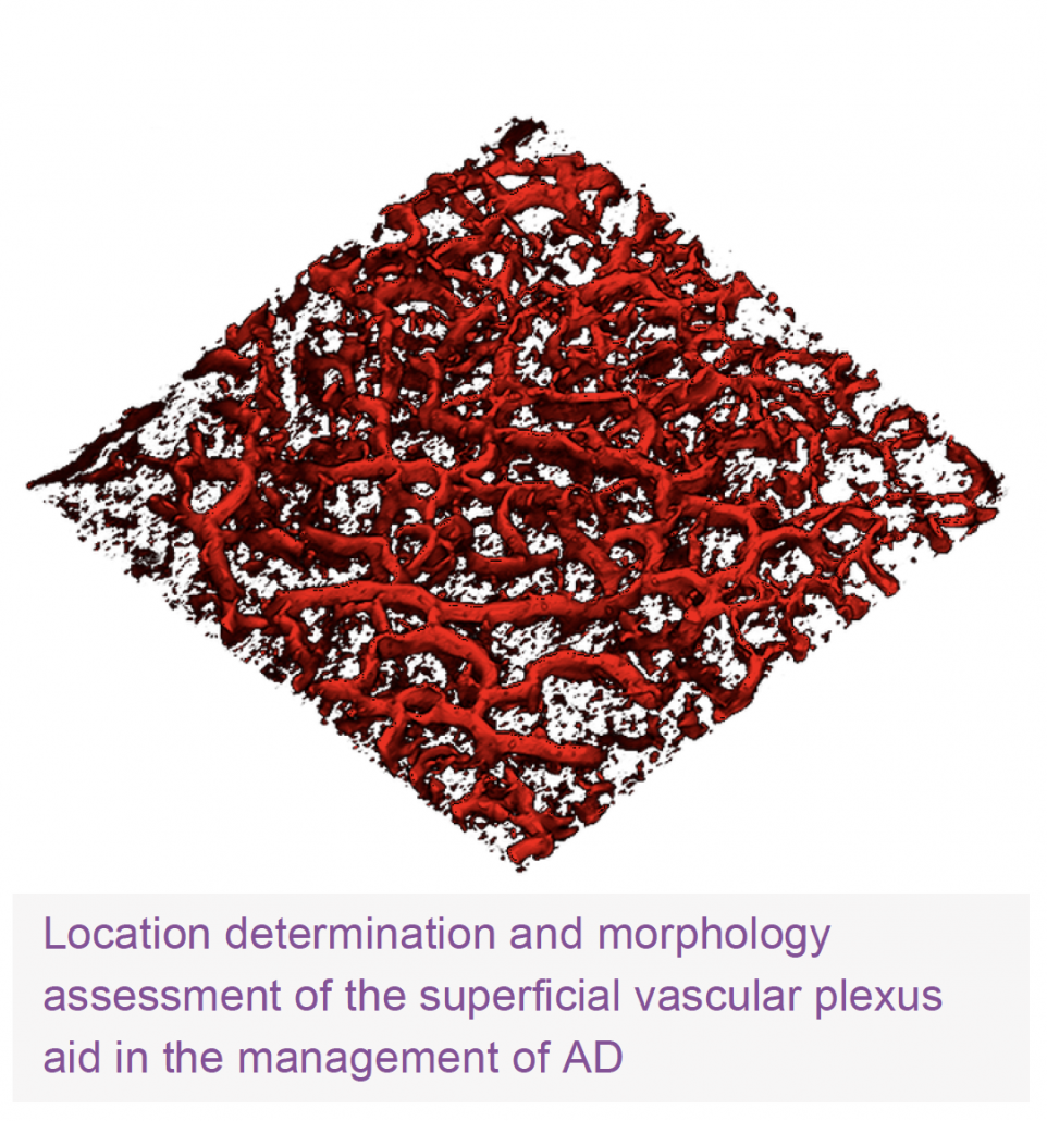 Location determination and morphology assessment of the superficial vascular plexus aid in the management of Atopic Dermatitis. VivoSight OCT