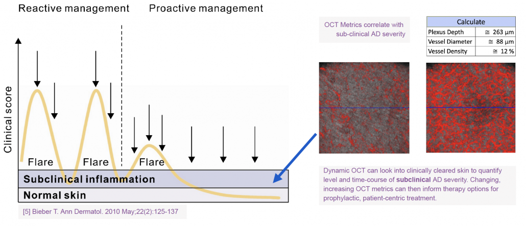 Dynamic OCT can look into clinically cleared skin to quantify level and time-course of subclinical AD severity. Changing, increasing OCT metrics can then inform therapy options for prophylactic, patient-centric treatment